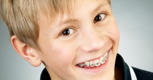 ms-blog_proper-brushing-with-braces